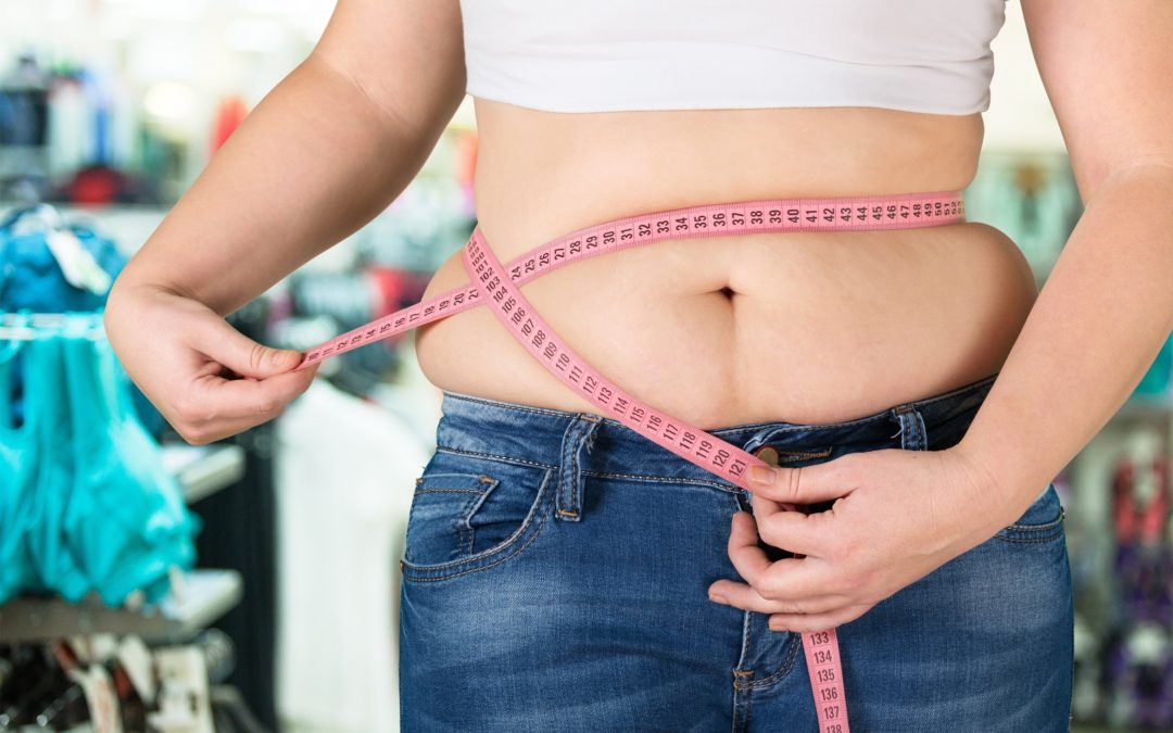 Should You Consider Liposuction after Weight Loss?