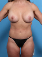 Breast Lift/Reduction with Implants - Case 1814 - After