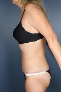 Tummy Tuck Patient Photo - Case 1042 - after view-1