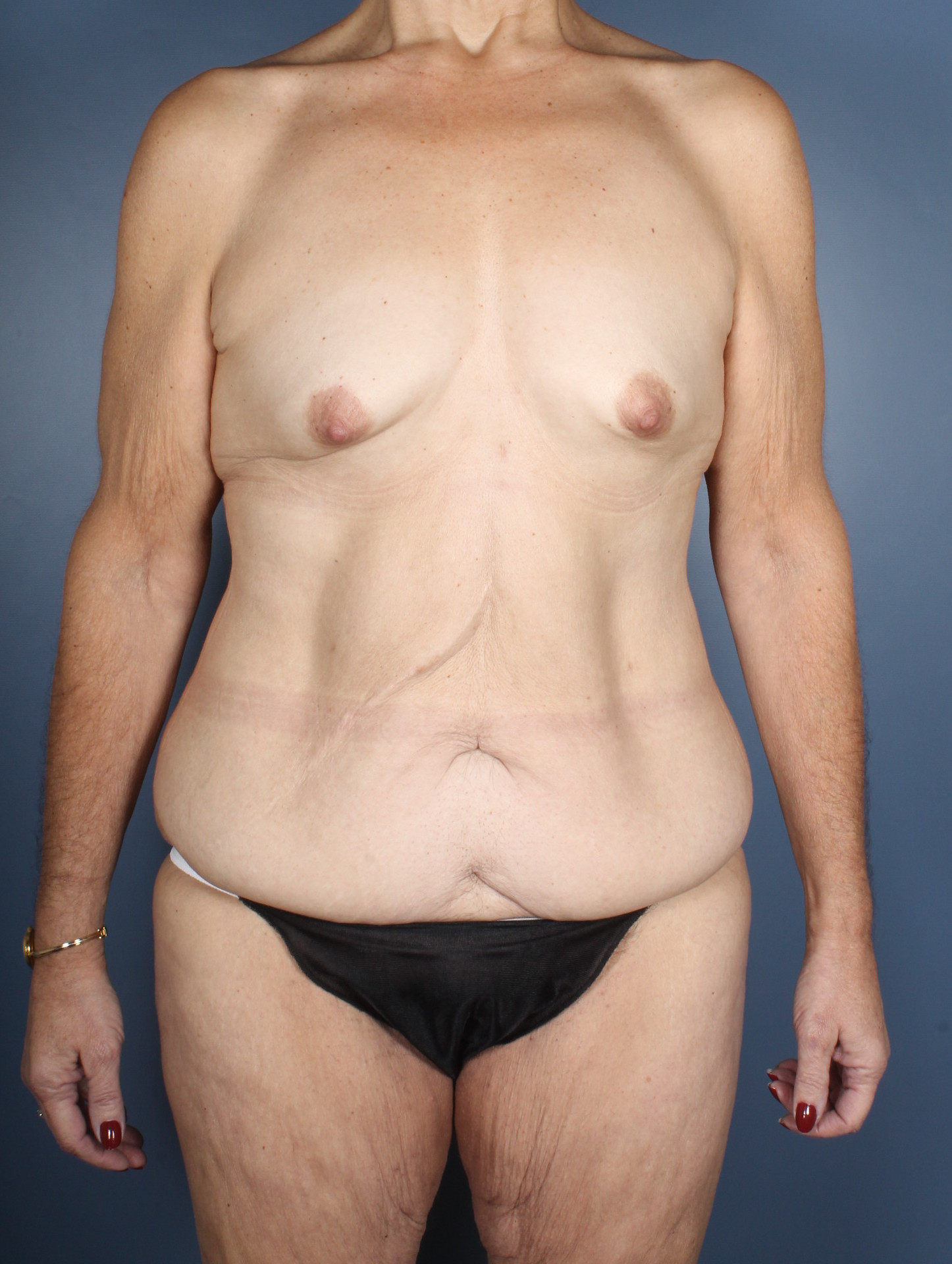After Weight Loss Patient Photo - Case 1372 - before view-