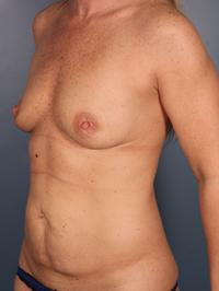 Tummy Tuck Patient Photo - Case 1053 - before view-1