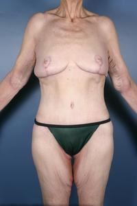 After Weight Loss Patient Photo - Case 1221 - after view
