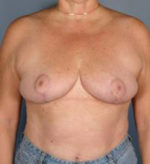 Breast Lift/Reduction w/o Implants - Case 416 - After