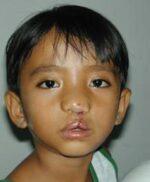 Volunteer Reconstructive Surgery - Case 286 - After
