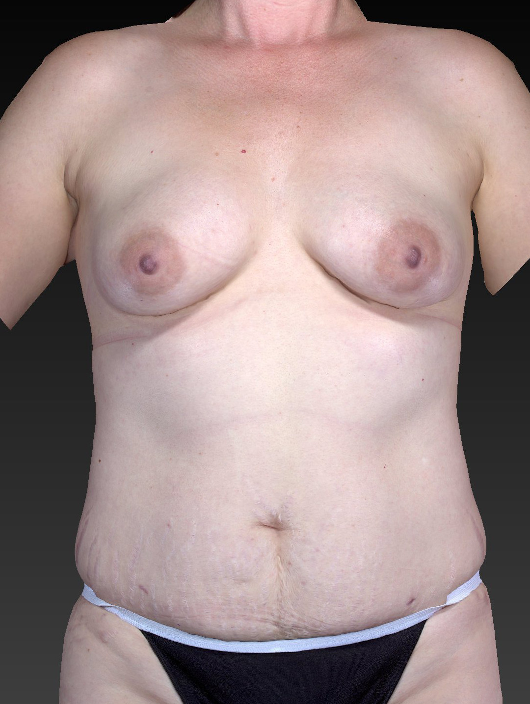 Mommy Makeover Patient Photo - Case 1595 - before view-