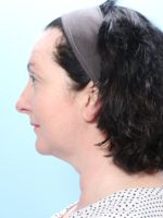 Chin Implant Photos - Case 1704 - After
