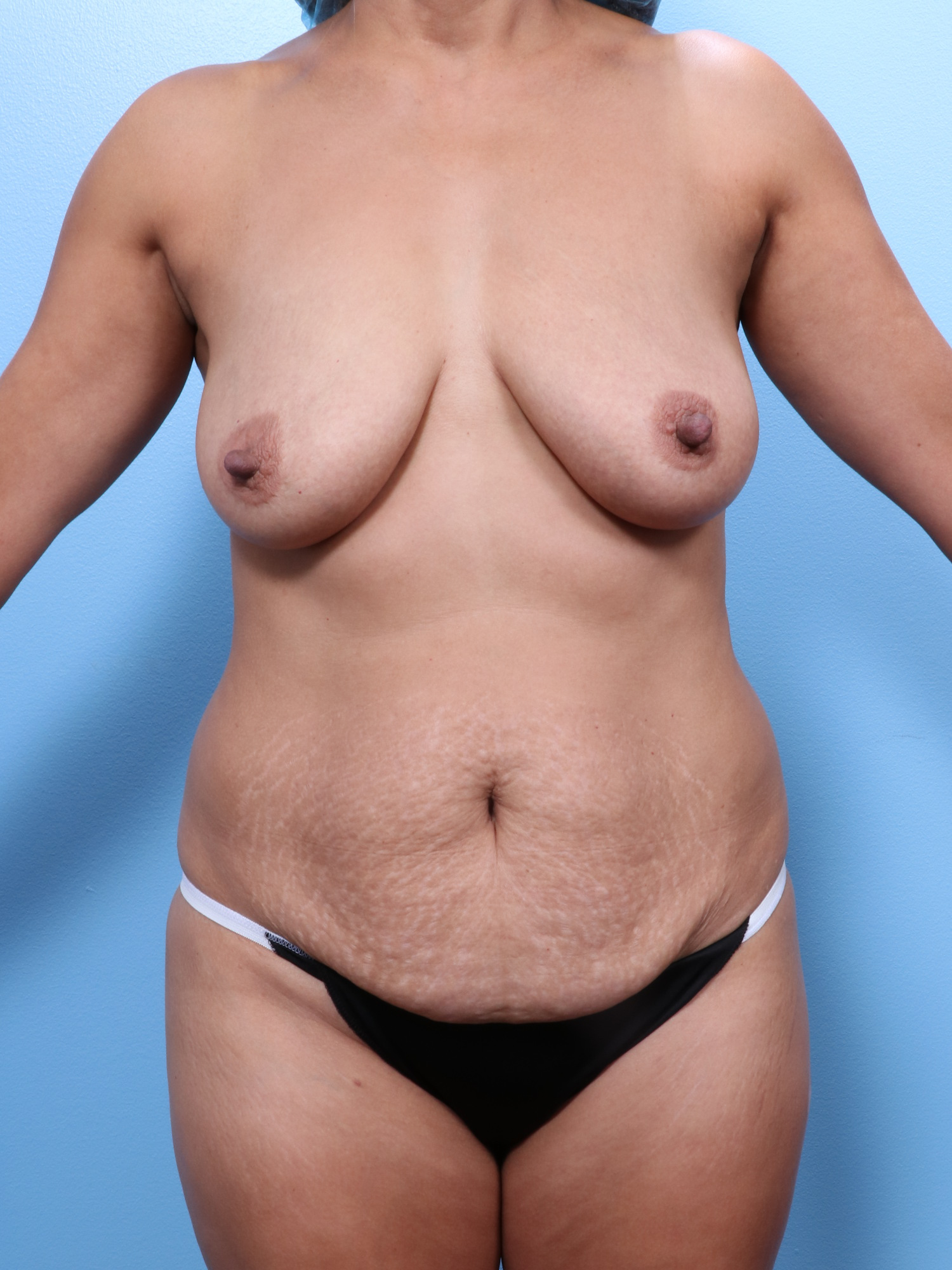 Mommy Makeover Patient Photo - Case 1718 - before view-