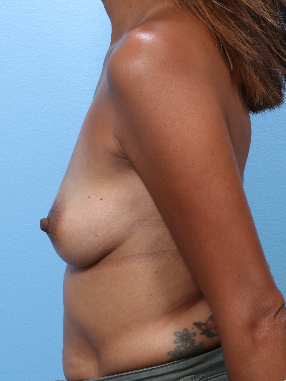 Breast Augmentation Patient Photo - Case 1738 - before view-1