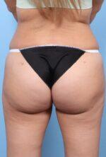 Brazilian Butt Lift - Case 1744 - After