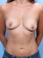 Breast Lift/Reduction with Implants - Case 1777 - Before