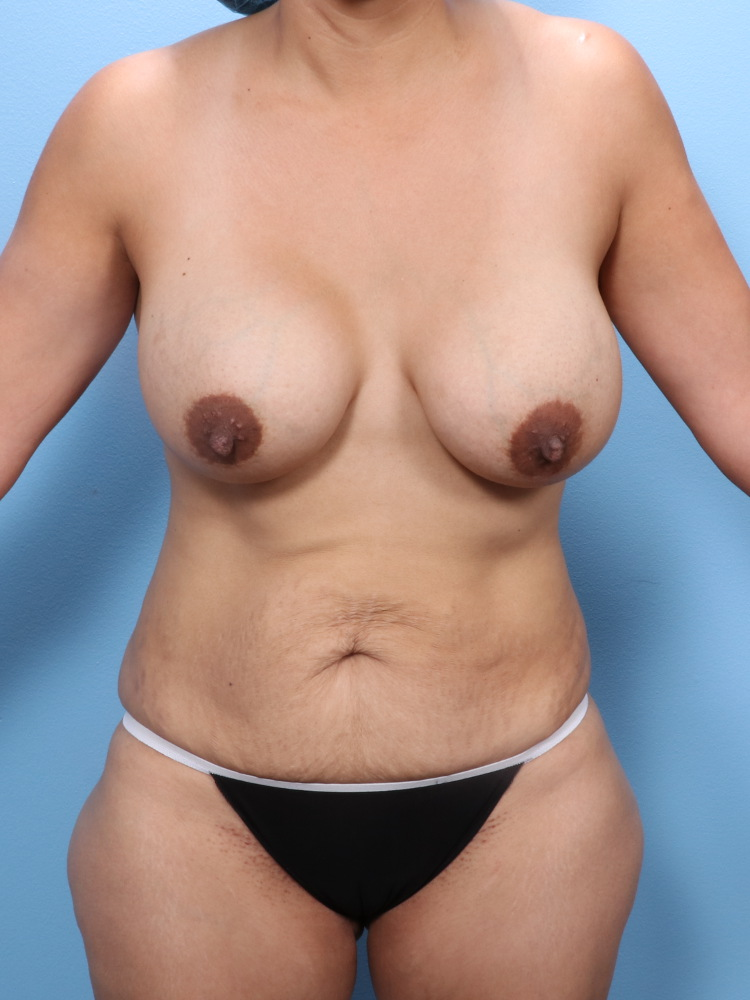 Mommy Makeover Patient Photo - Case 1781 - before view-