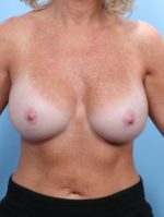 Breast Augmentation - Case 1803 - After