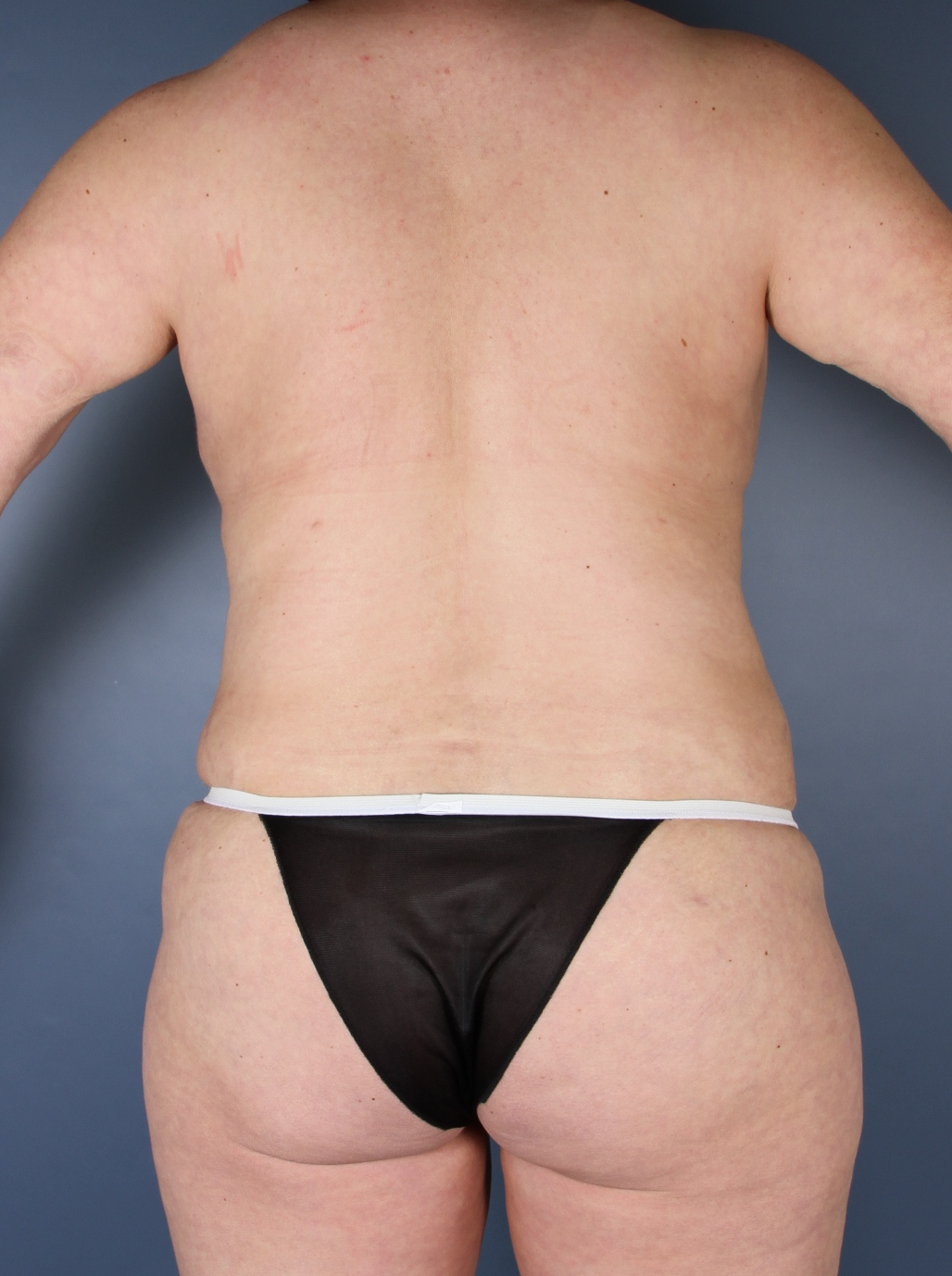 Liposuction Patient Photo - Case 1475 - after view