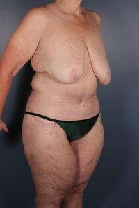 After Weight Loss Patient Photo - Case 1225 - after view-1