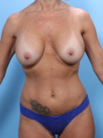 Breast Lift/Reduction with Implants - Case 1889 - Before