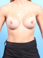 Breast Augmentation - Case 1902 - After
