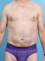 Male Liposuction - Case 16864 - After