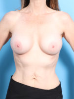 Breast Augmentation - Case 16879 - After