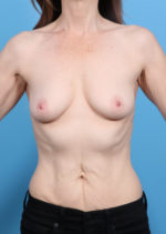 Breast Augmentation - Case 16879 - Before