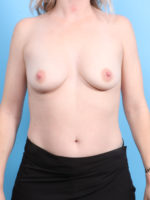 Breast Augmentation - Case 19210 - Before