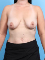 Breast Lift/Reduction with Implants - Case 19234 - Before