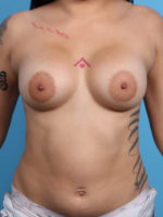 Breast Augmentation - Case 19250 - After