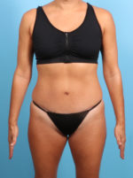 Tummy Tuck - Case 19377 - After