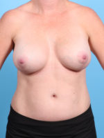 Breast Lift/Reduction with Implants - Case 19465 - After