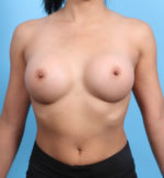 Breast Augmentation - Case 19481 - After