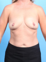 Breast Implant Removal - Case 19517 - After