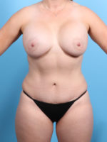 Breast Augmentation - Case 19981 - After