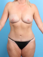 Breast Lift/Reduction w/o Implants - Case 20201 - After