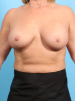 Breast Augmentation - Case 20348 - After