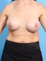 Breast Augmentation - Case 20408 - After