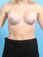 Breast Augmentation - Case 20680 - After