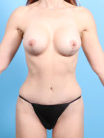 Breast Lift/Reduction with Implants - Case 20751 - After