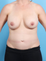 Breast Implant Revision - Case 20966 - Before