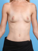 Breast Augmentation - Case 20999 - Before