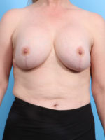 Breast Implant Removal - Case 21069 - Before