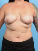 Breast Lift/Reduction with Implants - Case 21235 - Before