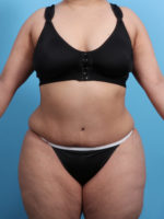Tummy Tuck - Case 21818 - After