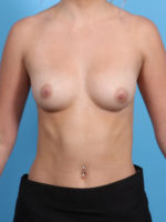Breast Augmentation - Case 21943 - Before