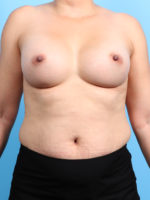 Breast Augmentation - Case 22213 - After