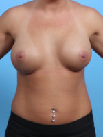 Breast Augmentation - Case 23134 - After