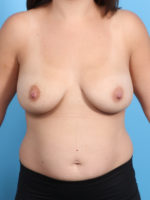 Breast Implant Revision - Case 23173 - Before