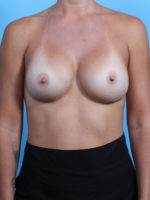 Breast Implant Revision - Case 23342 - After