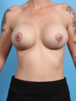 Breast Lift/Reduction with Implants - Case 23564 - After