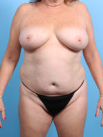 Breast Lift/Reduction w/o Implants - Case 23632 - Before