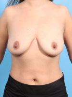 Breast Lift/Reduction with Implants - Case 23704 - Before