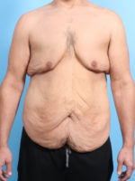 After Weight Loss - Case 23944 - Before